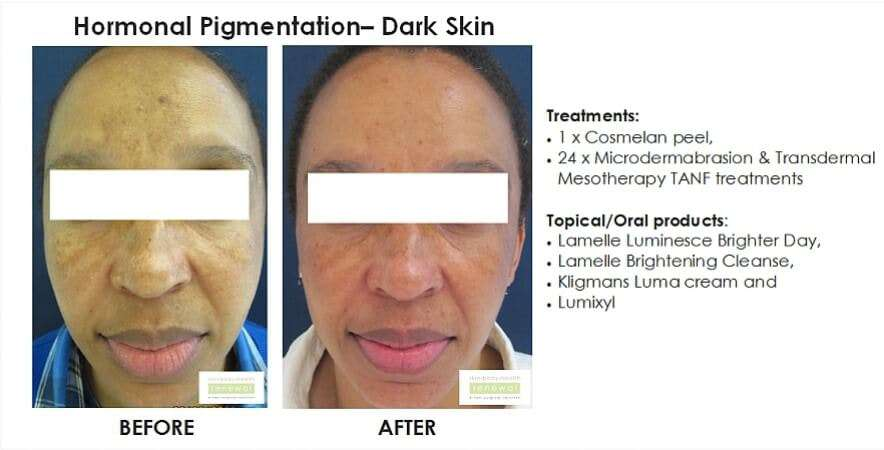 before and after, before, after,pigmentation, dark skin, black skin,blemishes, dark spots, microdermabrasion,mesotherapy, transdermal mesotherapy, lamelle