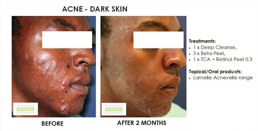 before and after,before, after,acne, dark skin, black skin,deep cleanse, beta peel, chemical peel, TCA peel, retinol, lamelle, acnevelle