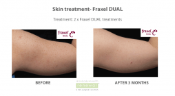 Before and after fraxel dual on arms