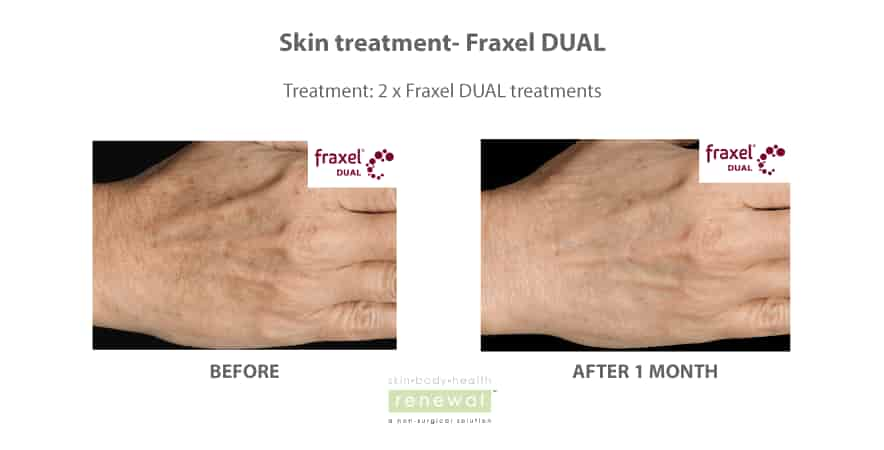 Before-and-after-fraxel-on hands