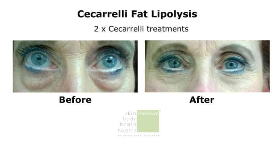 Cecarelli-before and after eye bags