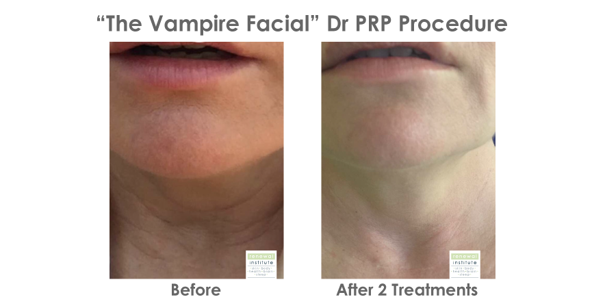 Before-and-after-prp-vampire-facial-neck-decolette