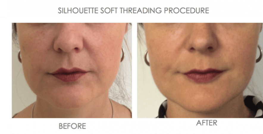 before and after of Threading for volume loss and wrinkles silhouette soft