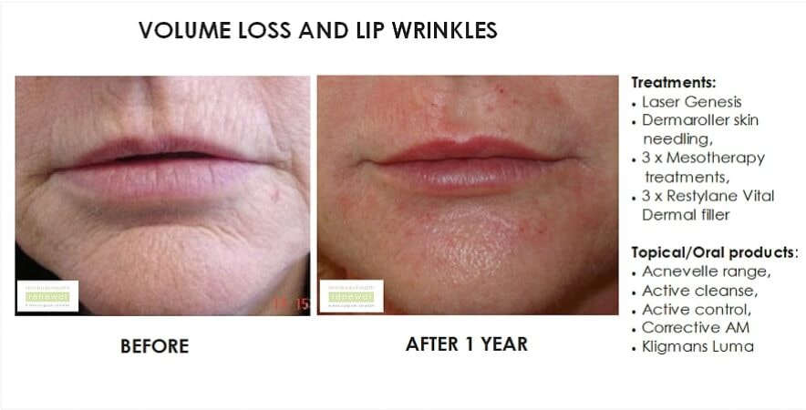 before and after nao labial folds of Threading for volume loss and wrinkles silhouette soft