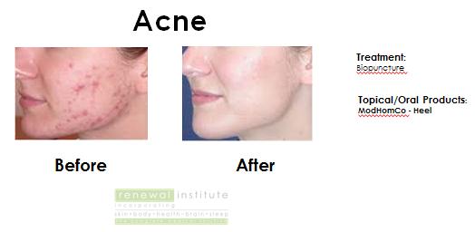 Acne | Acne Vulgaris | Treatments for acne
