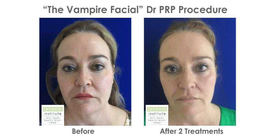 Prp Facial Platelet Rich Plasma Vampire Facial Skin Renewal