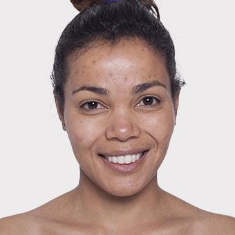 Mooimaak | Behind the Scenes | Skin Renewal | Kyknet