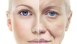 Medical Peels and Exfoliation-thumbnail-image